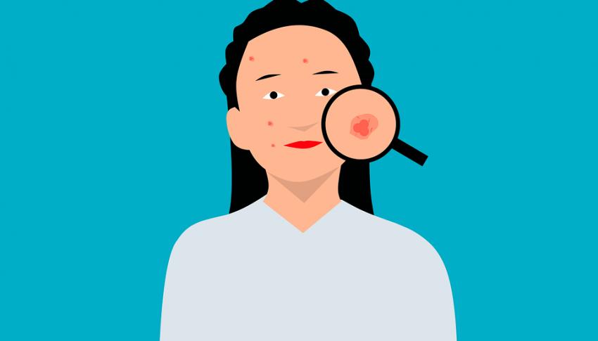 Punya Kulit Berjerawat? Inilah 5 Kandungan Skincare yang Harus Kamu Hindari
