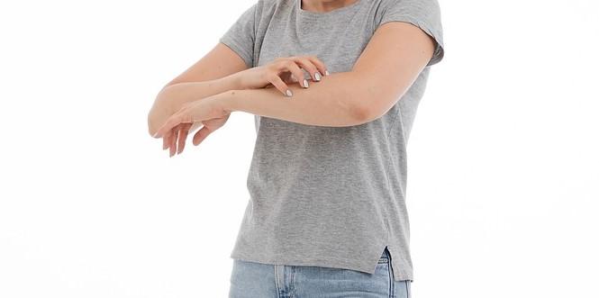 Mengenal Penyakit Kaligata (Biduran): Penyebab, Cara Mencegah dan Mengatasinya